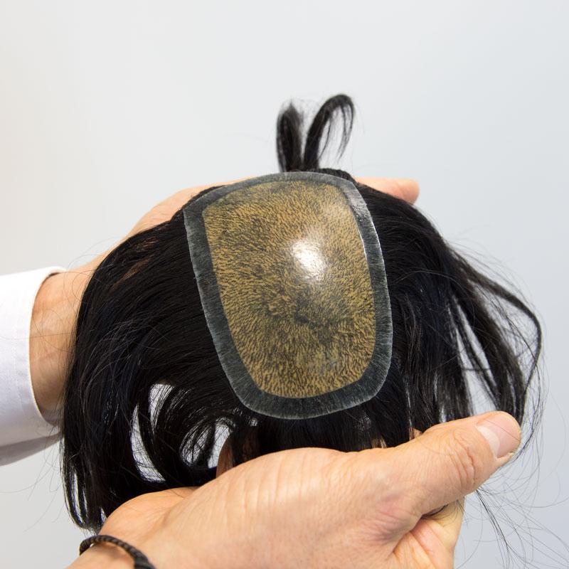 protesi-capelli-6