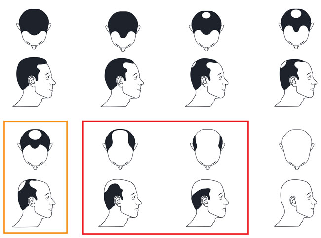 scala-norwood-calvizie-protesi-capelli
